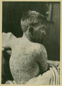 The disease ravaged the young. This boy was a patient at the Ullevål Hospital in the beginning of the 20th Century. Photograph courtesy of Oslo University Hospital Ullevål.